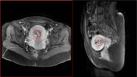 Figure 1: Axial and sagittal pelvic magnetic resonance imaging with gadolinium demonstrating multiple variable-sized hypervascular endometrial polyps
