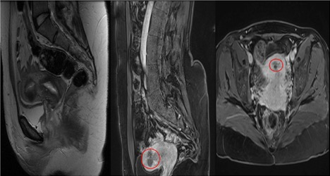 Figure 3: Enhanced pelvic magnetic resonance imaging after 7 and 18 months of uterine artery embolization showing complete avascular atrophy of endometrial polyps